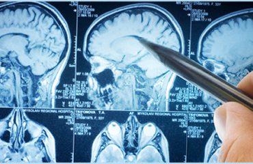 Shëndeti i trurit, aktiviteti sportiv dhe ushqimet ndihmojnë në shfaqen e sëmundjeve