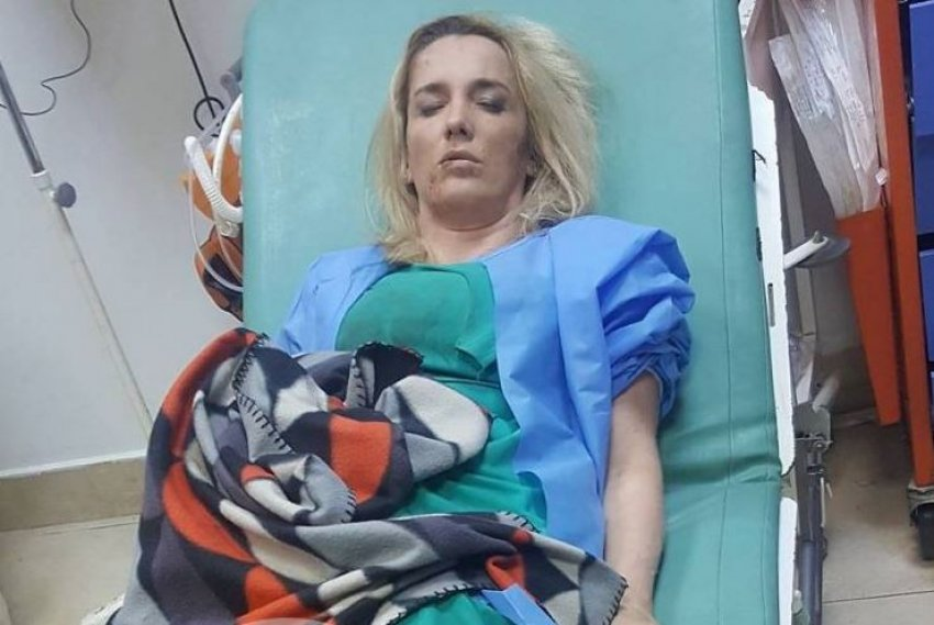Kosovë, rrihet barbarisht gazetarja Arbana Xharra