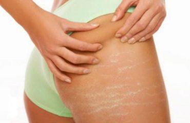 Strijat, defekti i lëkurës që prek femrat, si të parandalojmë daljen e tyre