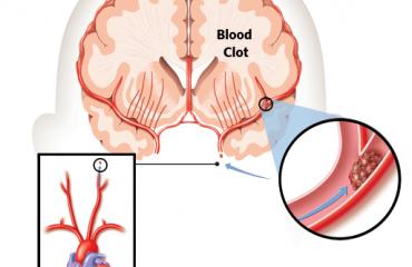 Rreziku për sulme në tru dhe zemër, 10 ushqimet që hollojnë gjakun