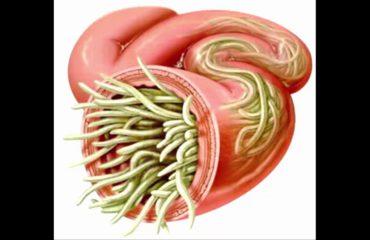 Infeksionet parazitare të zorrëve, si duhet të kujdesemi gjatë stinë së nxehtë