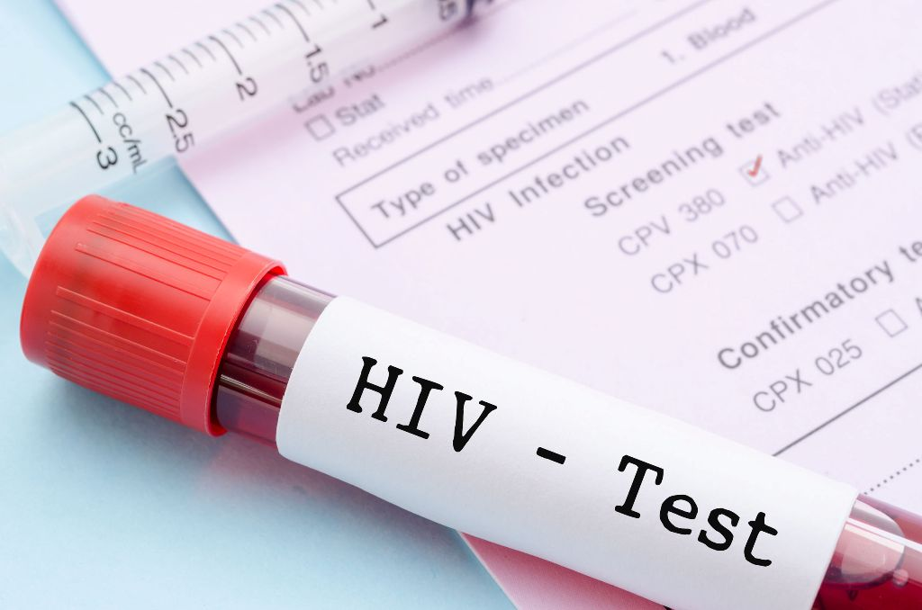 Rrëfimi: Sa e vështirë është të jetosh me HIV në Shqipëri