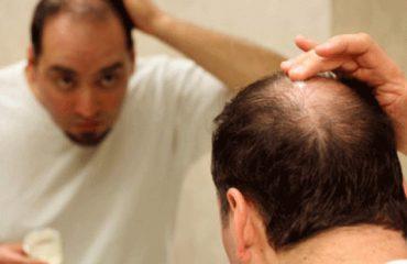 Rënia e flokëve, shkaqet dhe ushqimet e duhura