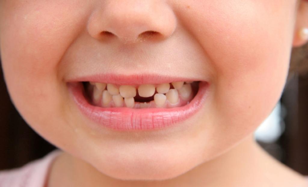 Shëndeti oral, fëmijët me dhëmbë të prishur, shkak vështirësia ekonomike