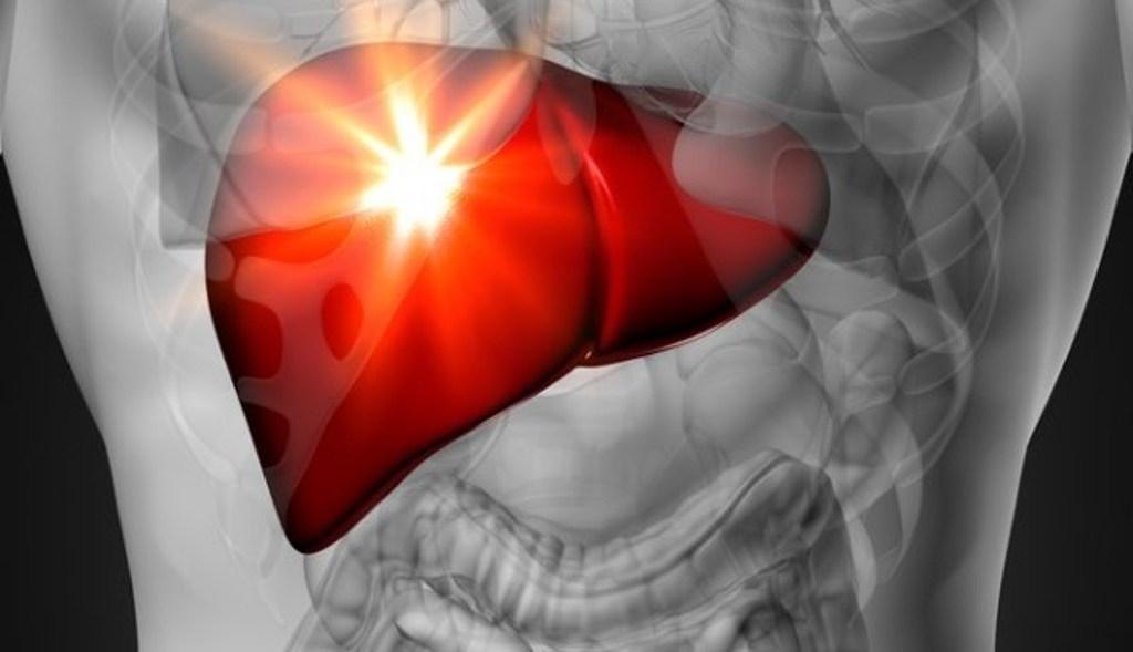 Ushqimi, alkooli dhe diabeti shkaktarët për dhjamosjen e mëlçisë