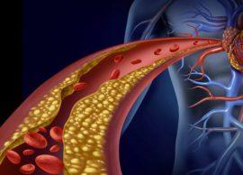 Kolesteroli i lartë, si duhet të sillemi në këto r