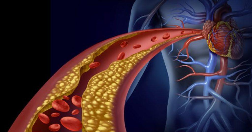 Kolesteroli i lartë, si duhet të sillemi në këto raste