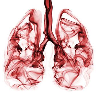 Kanceri në mushkëri, cilat janë simptomat që duhen kapur në kohë