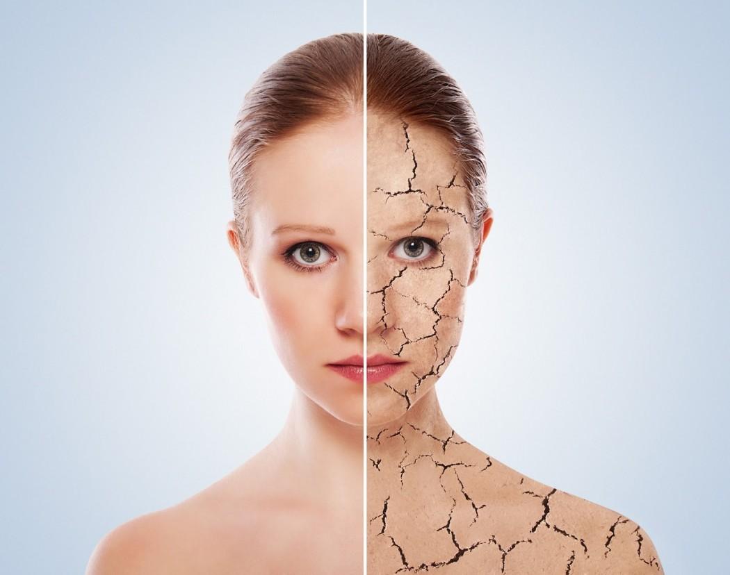 3 maska për lëkurë të thatë