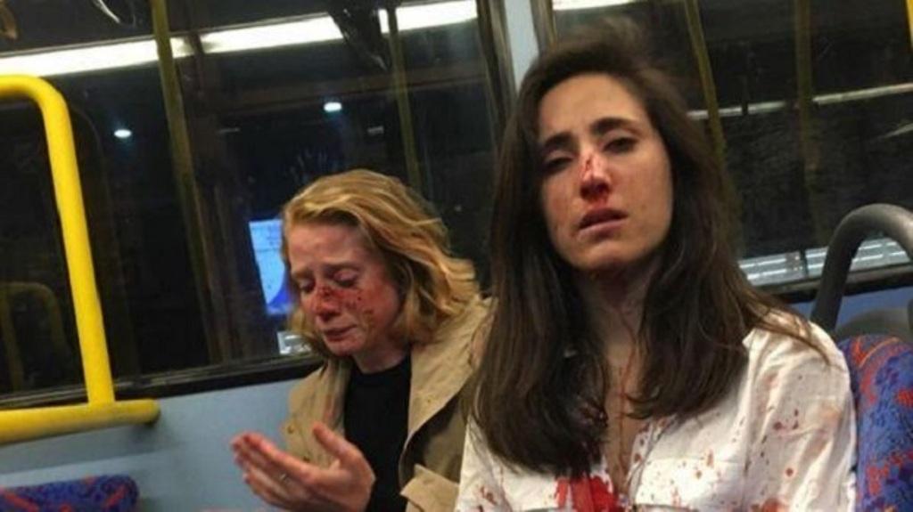 Rrihen barbarisht në autobus dy lesbike!